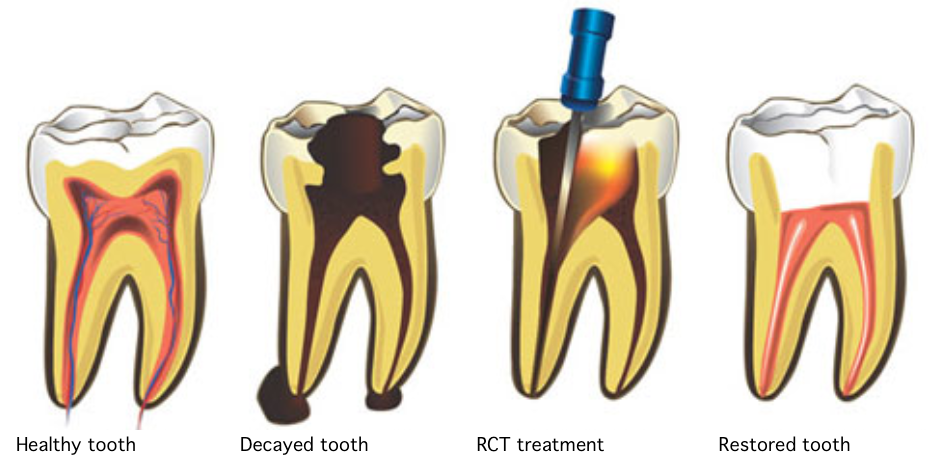 Root Canal in Pune